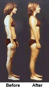 rolfing_before_after_girl
